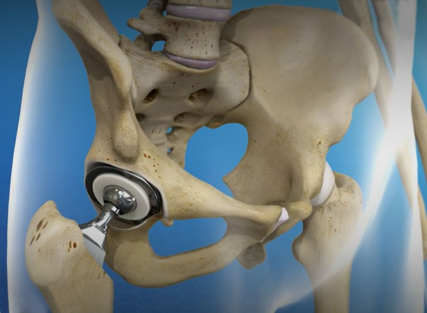 All you need to know about Hip replacement